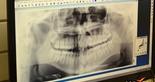 Odontologia Esportiva - 2  (Foto: Divulgação / cearasc.com)