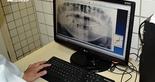 Odontologia Esportiva - 5  (Foto: Divulgação / cearasc.com)
