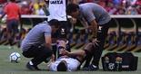 [02-09-2018] Flamengo 0 x 1 Ceara - Segundo Tempo - 14 sdsdsdsd  (Foto: Fernando Ferreira / Cearasc.com)