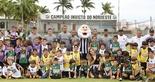 [12-10-2016] Dia das Crianças Alvinegro 2016 2 - 9 sdsdsdsd  (Foto: Christian Alekson / CearáSC.com)