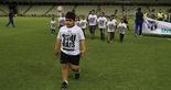 [11-10-2017] Ceara 1 x 2 Fortaleza Part. 1 - 13  (Foto: Lucas Moraes / Cearasc.com)