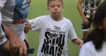 [25-03-2017] Ceará 4 x 1 Uniclinic - Crianças com Síndrome de Down - 9  (Foto: Bruno Aragão / CearaSC.com)